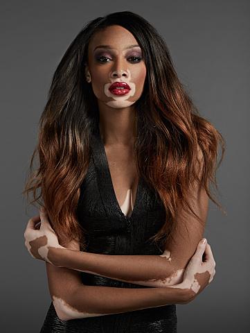 Chantelle model with vitiligo